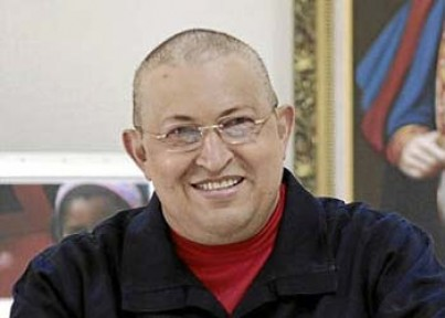 Chavez'in durumu iyi