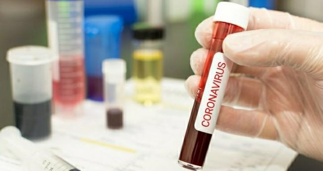 Türkiye'de ilk koronavirüs vakası tespit edildi