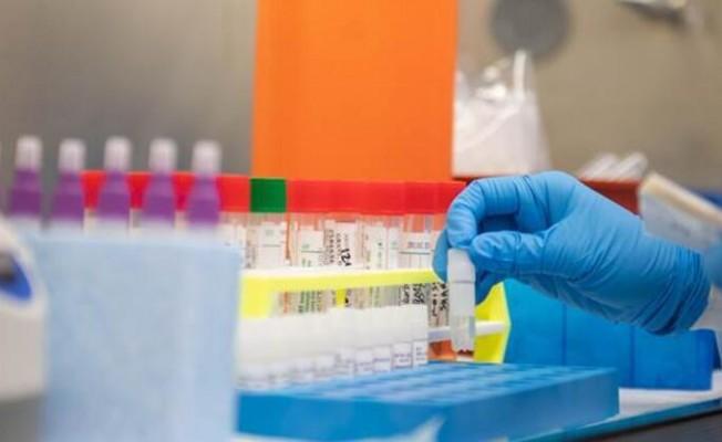 Pilli: Toplam 209 test yapıldı, pozitif vaka yok