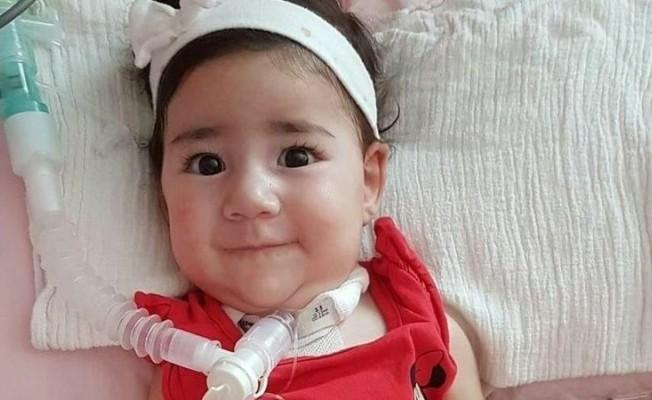 Asya bebeği Güney Kıbrıs tedavi edecek